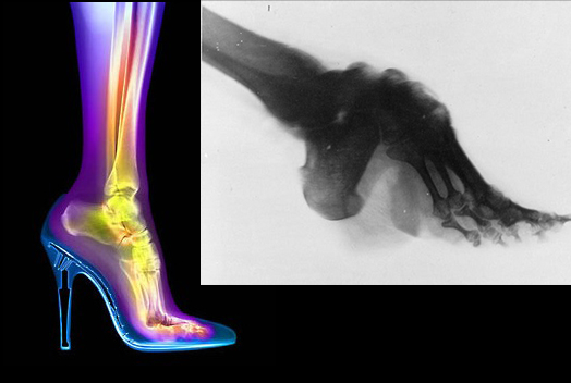 xray comparison high heels foot binding