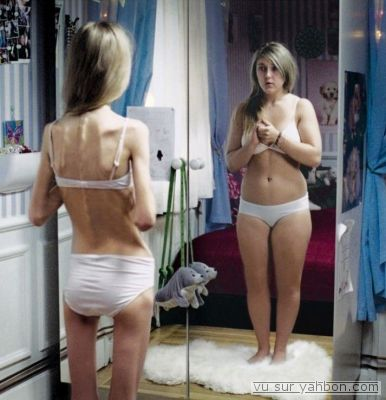 Look at anorexia in the mirror