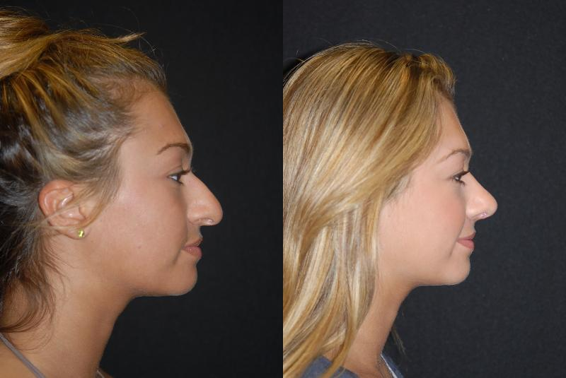 Facial jersey new plastic surgeon