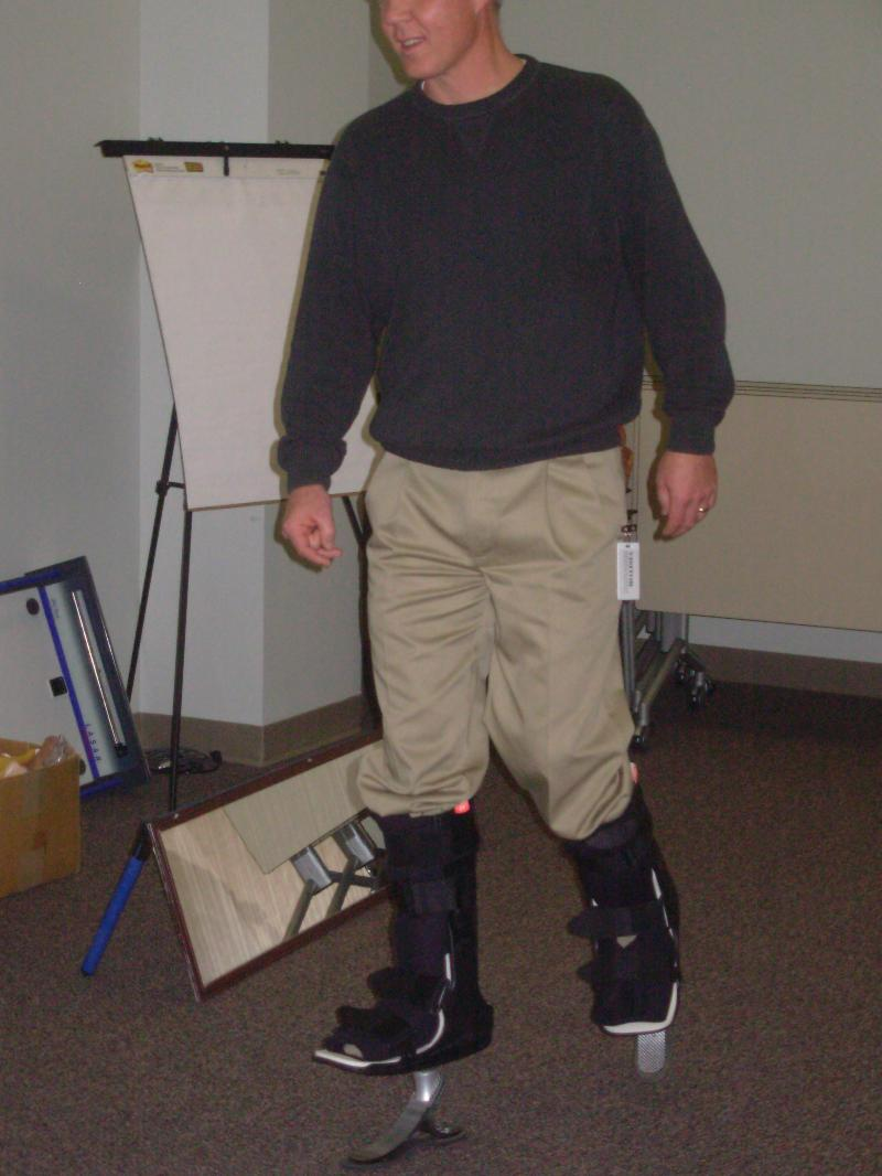 John on prosthoses