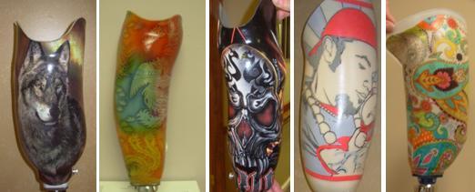 New prosthetic socket design