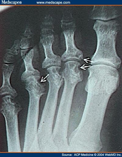 rheumatoid x-ray