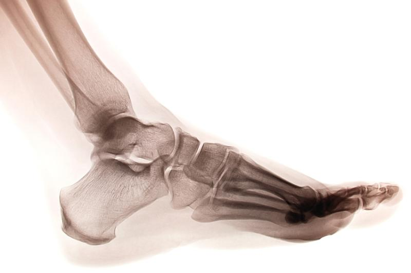 Foot X-Ray