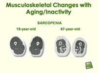 Sarcopenia small