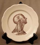 KC plate