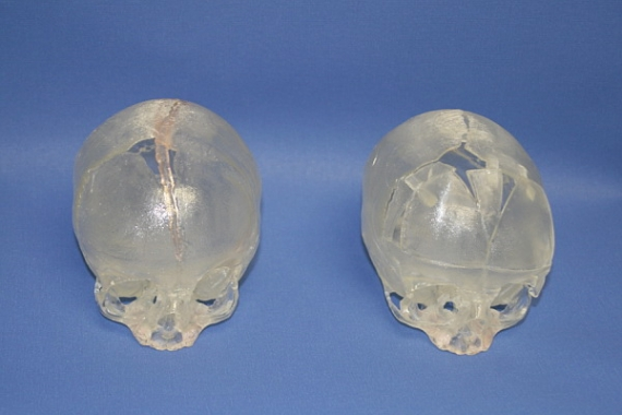 Infant Skull Reconstruction