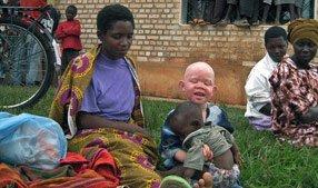 Albino boy Burundi