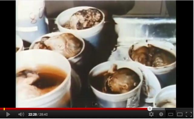 Silent-Scream-Abortion-Is-Murder-Video