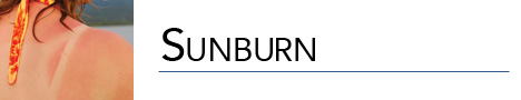 sunburn banner