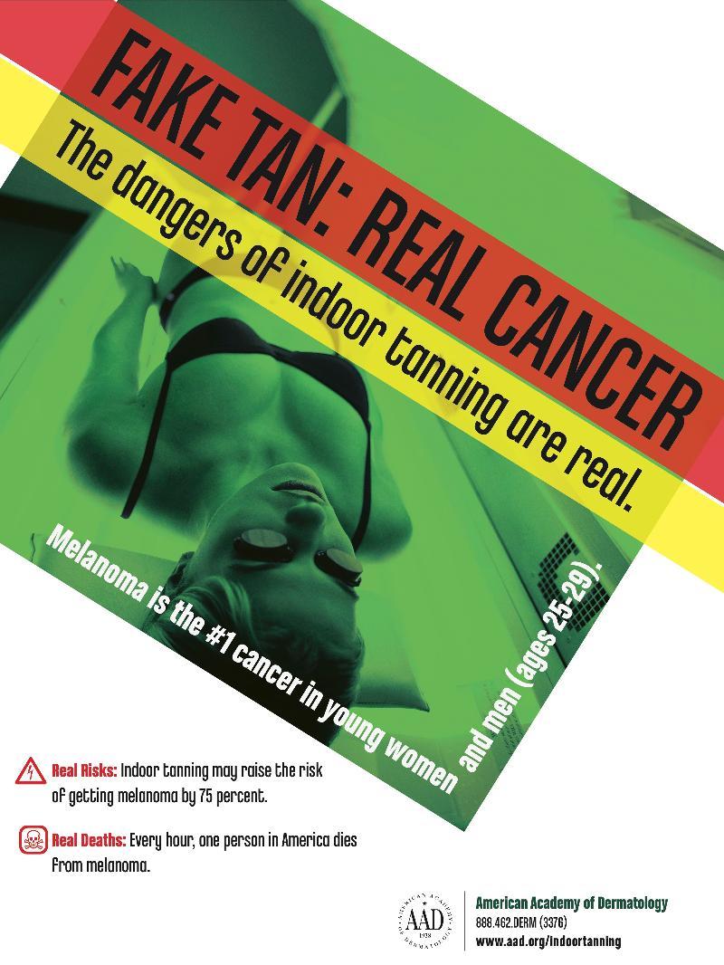 Fake Tan: Real Cancer