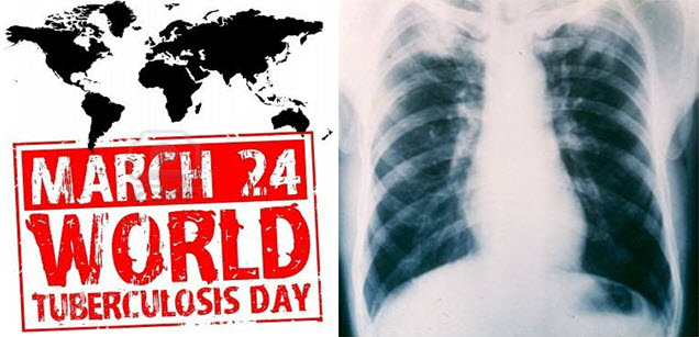 world TB day and TB xray