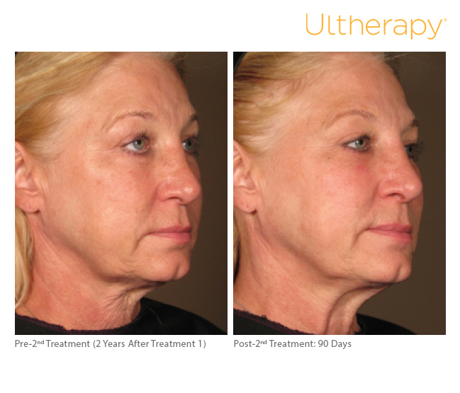 Ultherapy Maryland