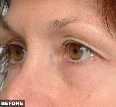 Before Thermage Eye Treatment