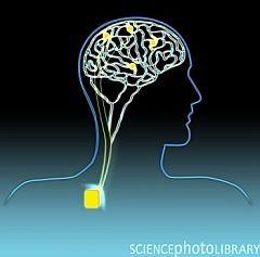 brain stim
