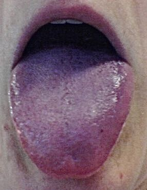 purple tongue