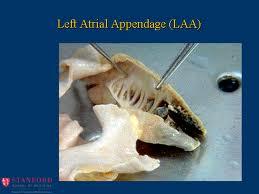 Left Atrial Appendage