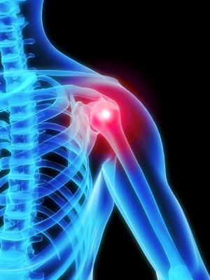 Shoulder pain picture