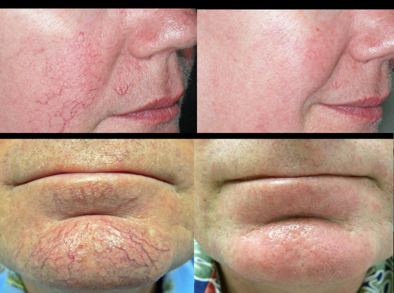 Lasers used to remove facial veins