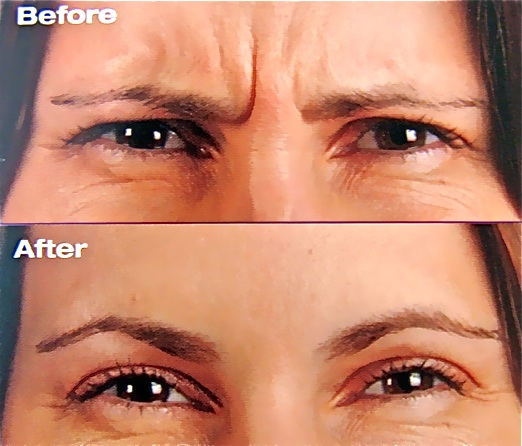 BOTOX EYES BEFORE AND AFTER