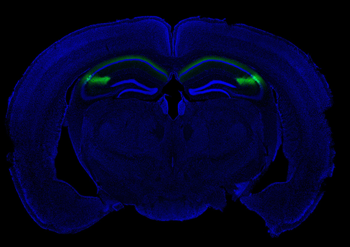 Brain Region