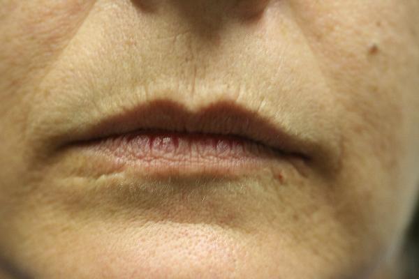 before lips