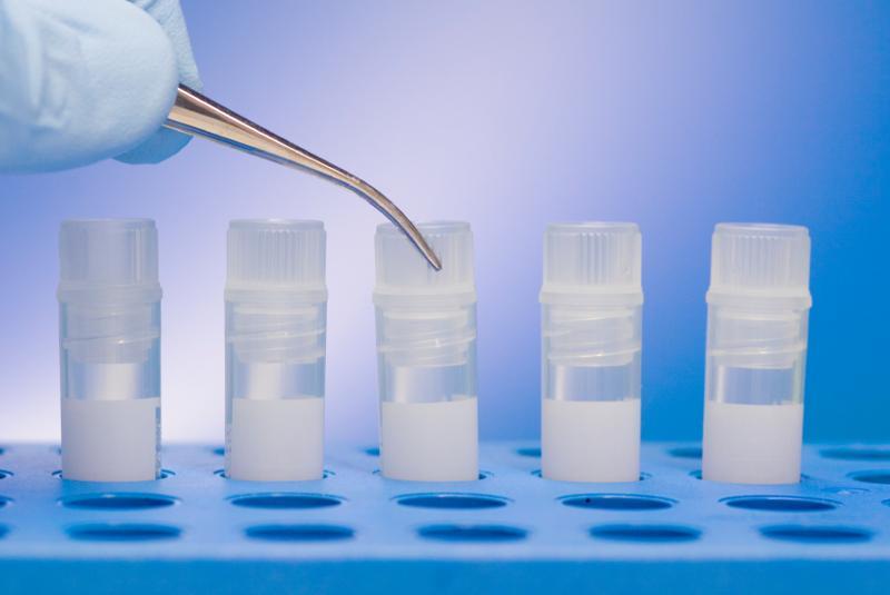 HIV Testing Vials
