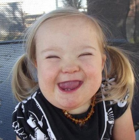 eme smile