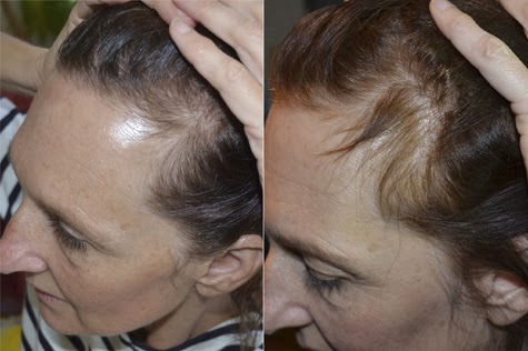 stop hair loss with essential oils
