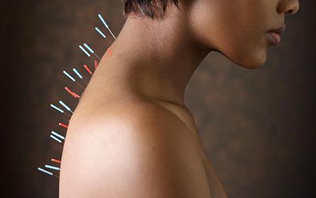 main acupuncture pic