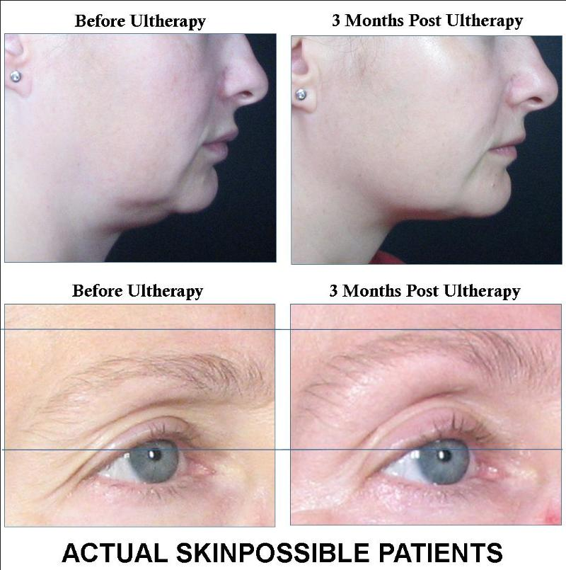Skinpossible Before and After Ultherapy!