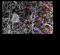 Brainbow AAV hippocampus axons