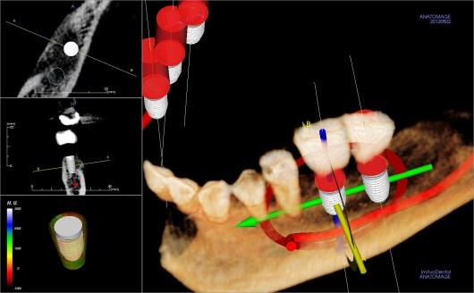 X-Ray Dental Implant on bottom Teeth
