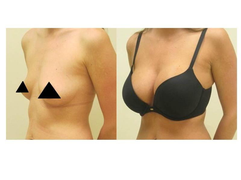 375 Ml Breast Implants