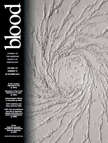 SDS cell on cover of Blood Journal