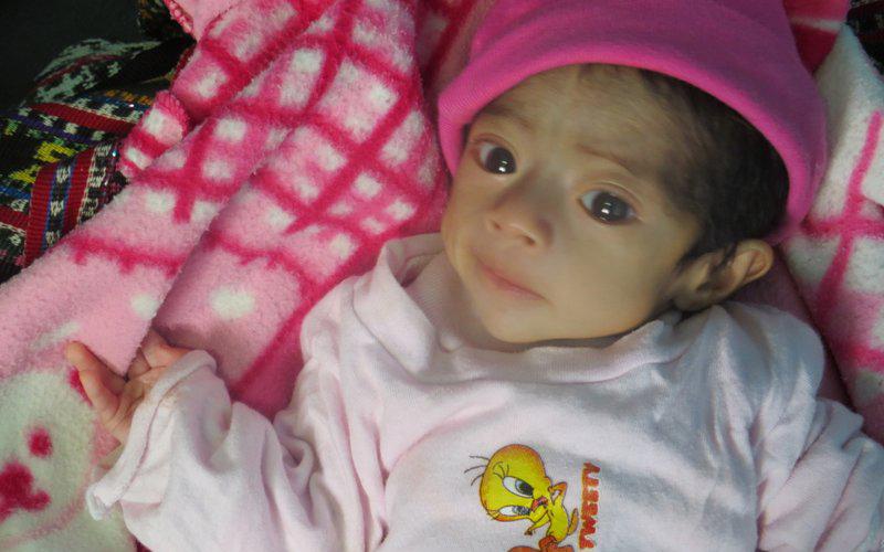 Baby Myra Update
