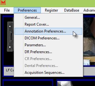 Annotation Preferences-7