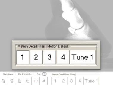 Metron Filter Tools
