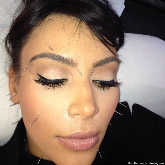 Kim Kardashian Gets Acupuncture