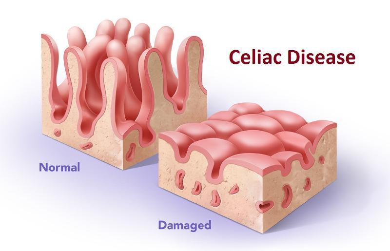 Celiac Normal > Damaged