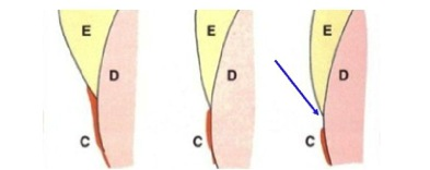 possible configurations at the CEJ.  Figure 3 shows a probable location for ICR to occur under the right conditions