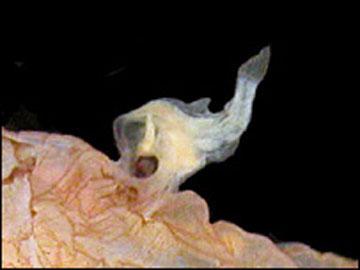 Anglerfish male