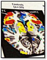 AMA Psychiatry paper by Dr. Alex Dombrovski