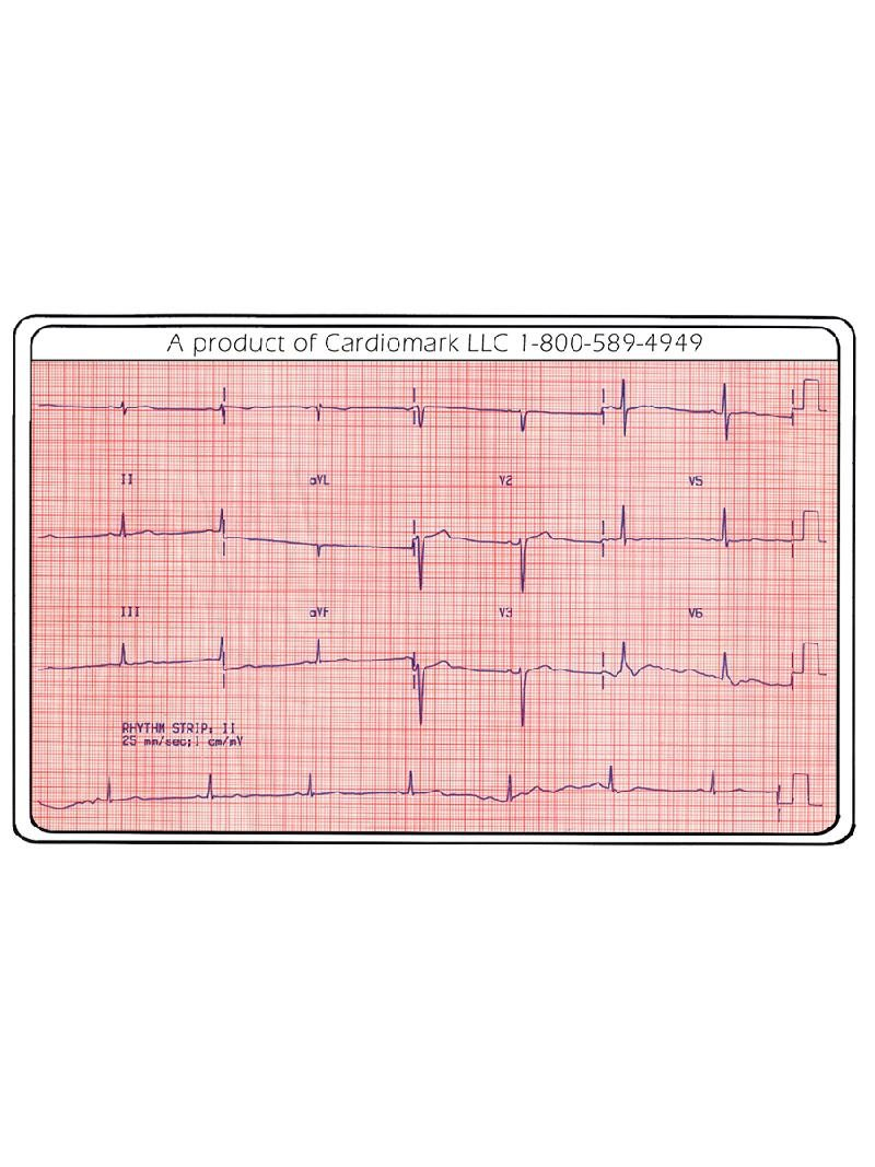 Pocket EKG Card Back