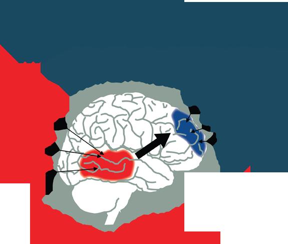 HBL Brain