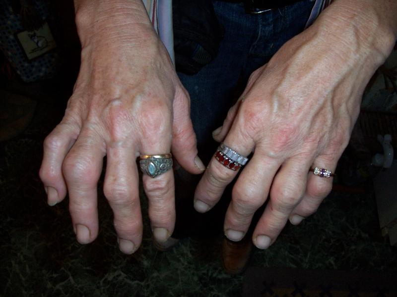 Chrissy's Hands