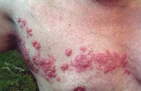 Photo of shingles on a man's chest
