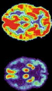 Two PET scan brain images