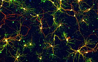 Amyloid-beta molecules, implicated in Alzheimer's Disease, bind to neurons.