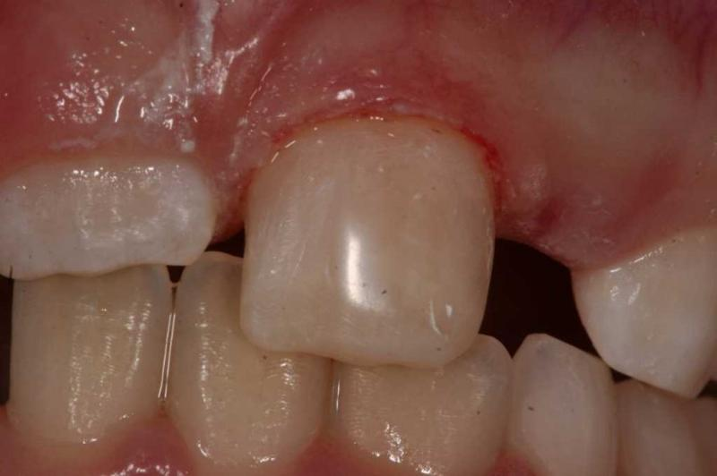 dysplasia after