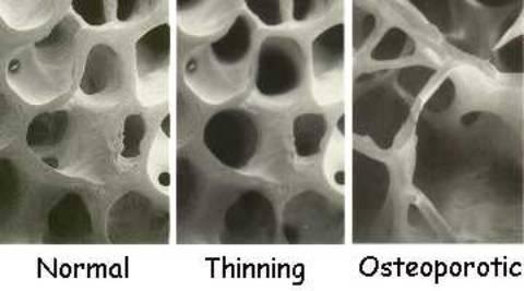 Bone Comparisons